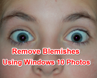 Remove Blemishes using Windows 10 Photos
